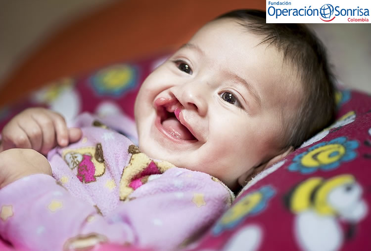 Luciana nació con la condición de labio fisurado y paladar hendido.