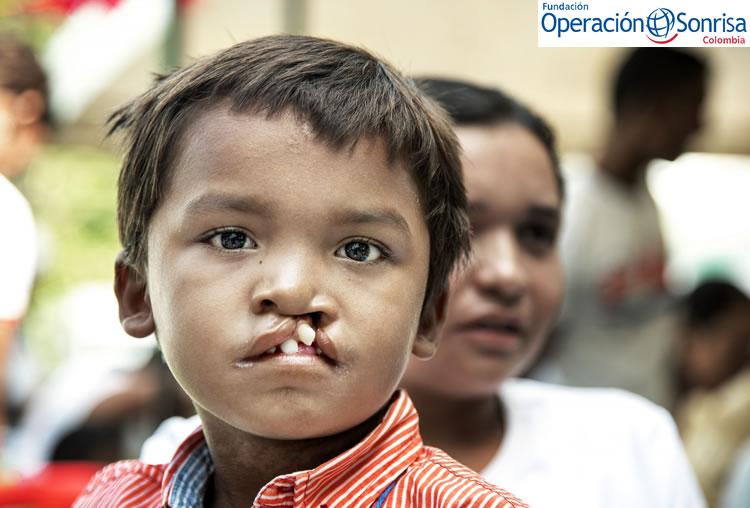 Pedro y Marbelis esperan la valoración de salud integral de Pedro durante la misión médica Operación Sonrisa Colombia en Riohacha. Foto: Rohanna Mertens.
