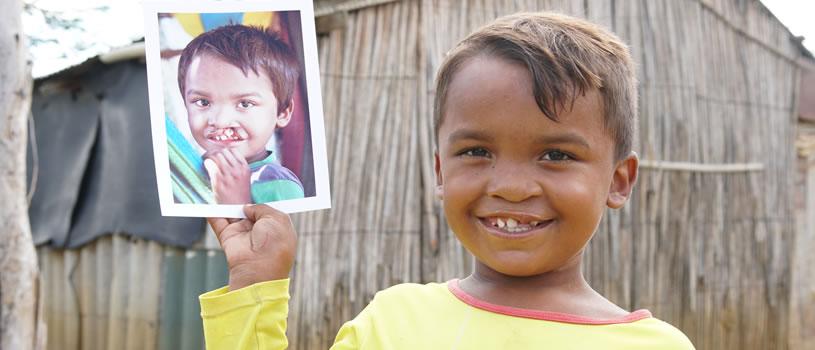 En medio de la crisis migratoria, las sonrisas sanan
