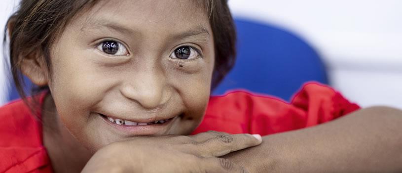 Perseverancia y resiliencia: el viaje de sanación de Lexxi a través de Operation Smile Colombia